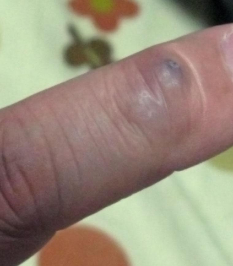 指 の 関節 黒ずみ